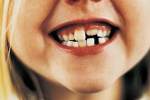 021112-teeth