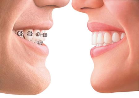 clear_braces