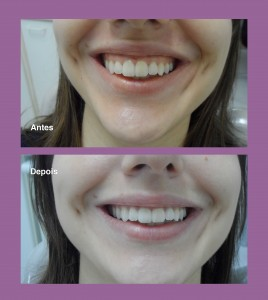 dentalestetica1