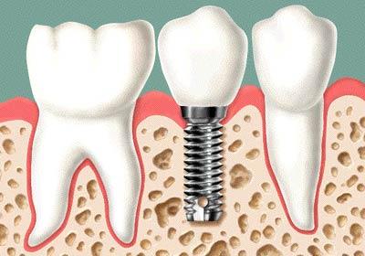 implantes_odontologia
