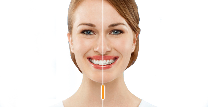 invialign-vs-braces copy