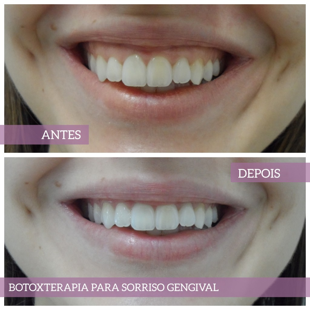 Botoxterapia para sorriso gengival.
