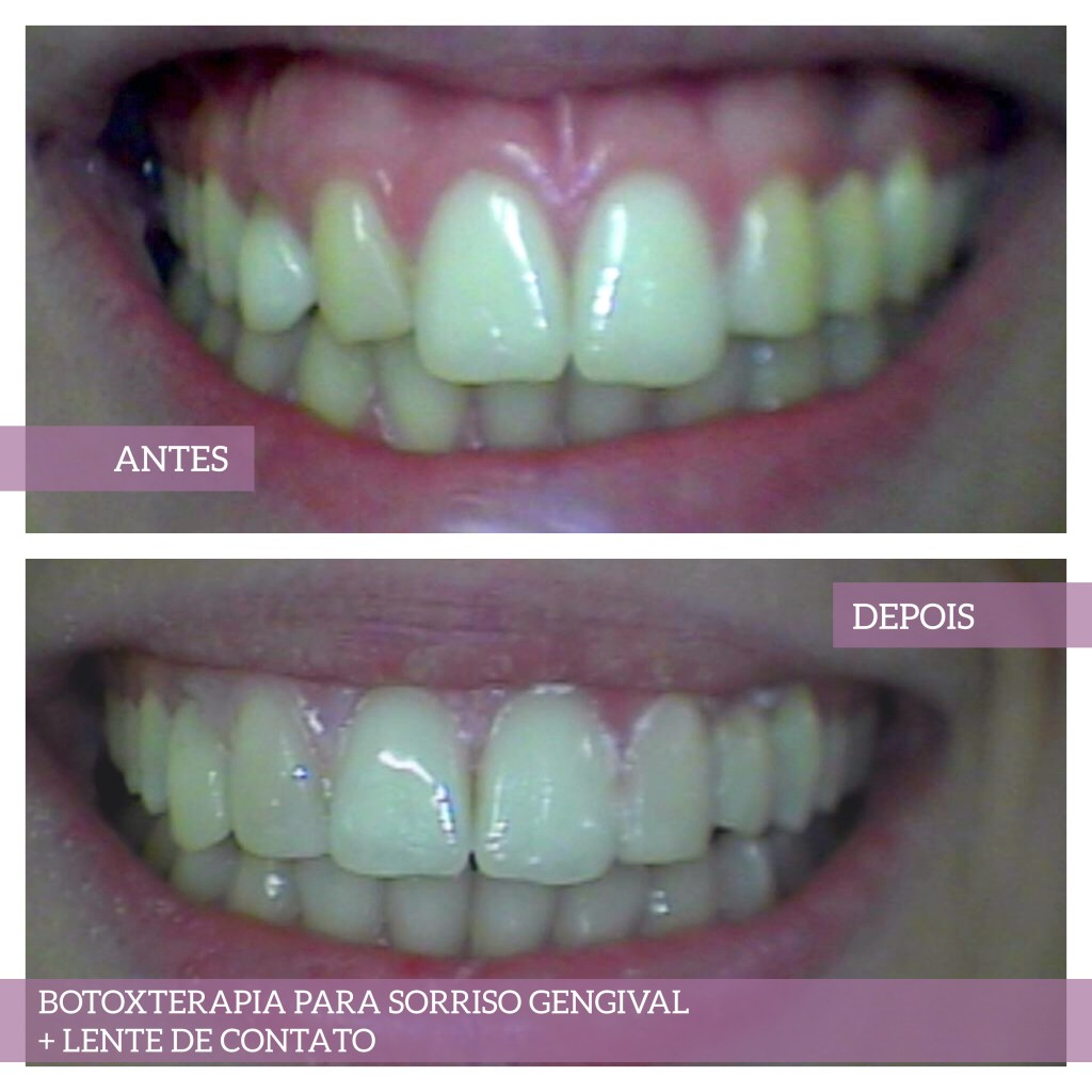 Botoxterapia para sorriso gengival