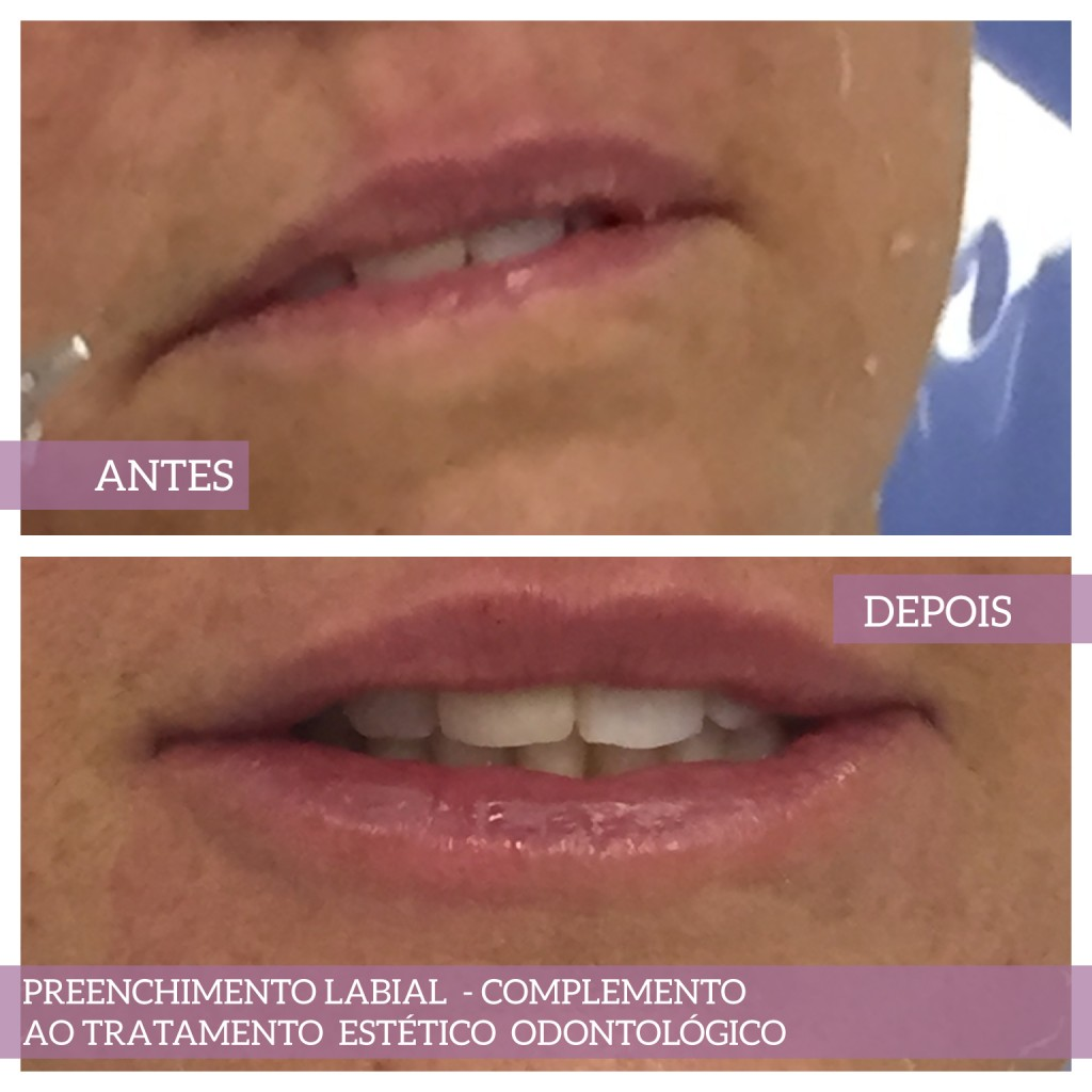 Botoxterapia labial