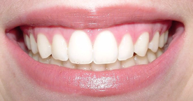 Caso clínico realizado após 1 sessão após fim de tratamento odontológico.